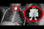 Video - 10 seltsame Gegenstände, die im menschlichen Körper gefunden wurden
