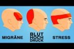 Video - So wirst du Kopfschmerzen in 5 Minuten los