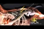 Video - das Wunder der Chirurgie