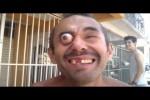 Video - Was dieser Mann mit dem Auge macht ist krass